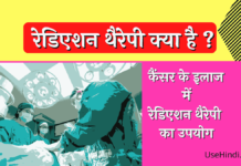 Radiation Therapy in Hindi
